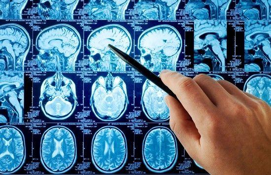 Почему развивается отек головного мозга