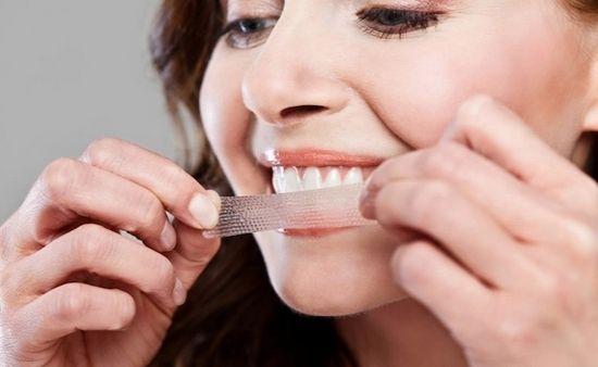 Как отбеливающие полоски могут осветлить зубы?