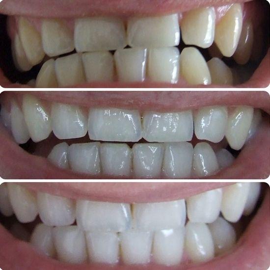 Плюсы и минусы отбеливания зубов с помощью полосок