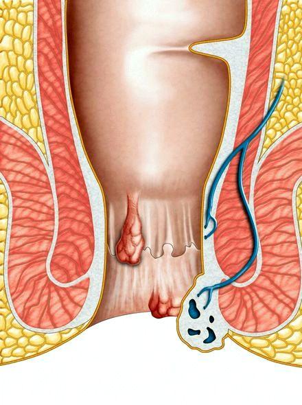 Геморрой после родов лечение при грудном вскармливании прямых солнечных