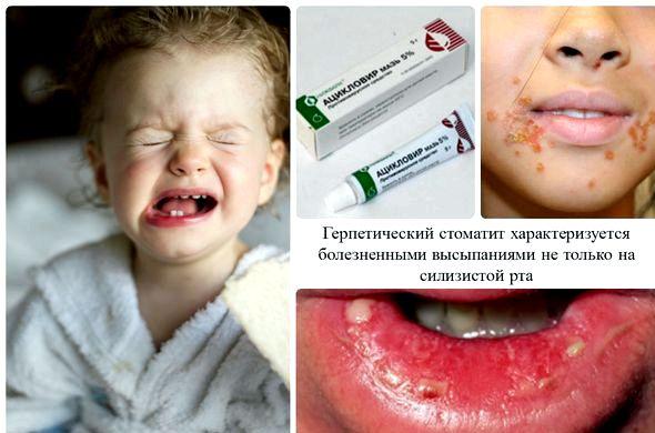 Стоматит у ребенка лечение в домашних условиях или слабый раствор марганцовки